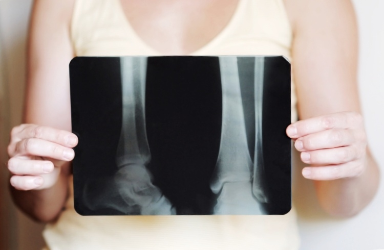 A Osteoporose